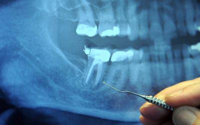 Dentistry Treatment Xray